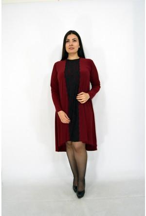 Violetta Dantel Şeritli Elbise