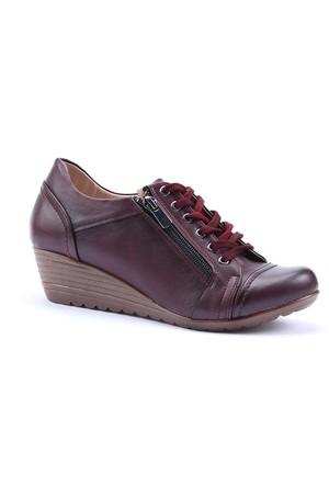 Dizzy Cilt Dolgu Topuk Yandan Fermuarlı Ayakkabı