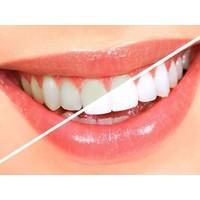 Dr. White Karbon Etkili Diş Beyazlatma, 7 Ton Daha Beyaz 7 Kat Daha Güçlü