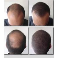 Fixplant 25 Gr. Siyah , Saç Tozu