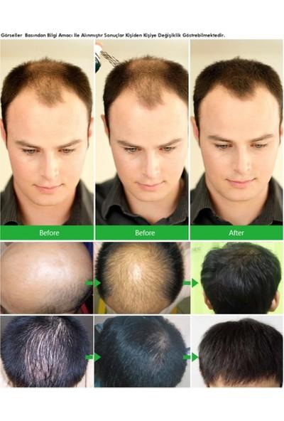 Dexe Saç Dolgunlaştırıcı Spray 100ML