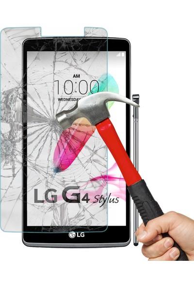 CaseUp LG G4 Stylus CaseUp Ekran Koruyucu