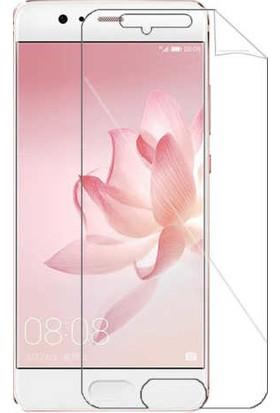 IPG Huawei P10 Plus Görünmez Ekran Koruyucu