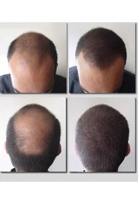 Fixplant Siyah 25 gr + Alkolsüz Saç Spreyi Saç Tozu