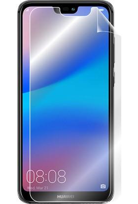 """IPG Huawei P20 Lite 5.84"""" Görünmez Ekran Koruyucu"""