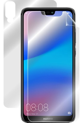 "IPG Huawei P20 Lite 5.84"" Görünmez Tam Kaplama"