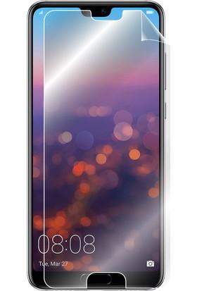 """IPG Huawei P20 5.8"""" Görünmez Ekran Koruyucu"""