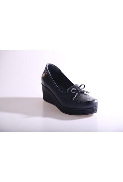 Mammamia Kadın 315B Günlük Ayakkabı Lacivert Lacivert Rugan