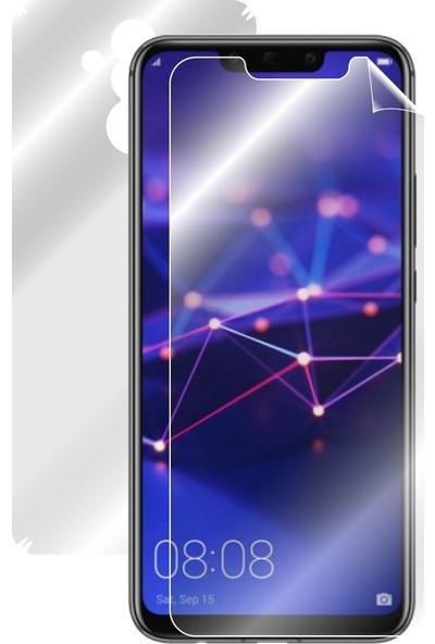 IPG Huawei Mate 20 Lite Tam Kaplama