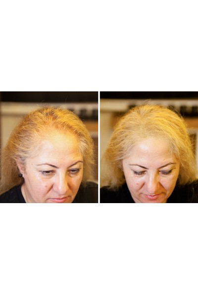 Fixplant Lady 1 Şişe 25 gr ( Saç Gürleştirici, Saç Dolgunlaştırıcı, Saç Fiberi, Saç Tozu )+ Optimizer