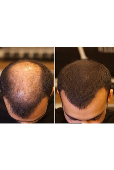 Fixplant Muhteşem İkili Fixdeep Suda Çıkmayan Yeni Nesil Saç Gürleştirici + Fixplant Saç Dolgunlaştırıcı + Optimizer Hediyeli