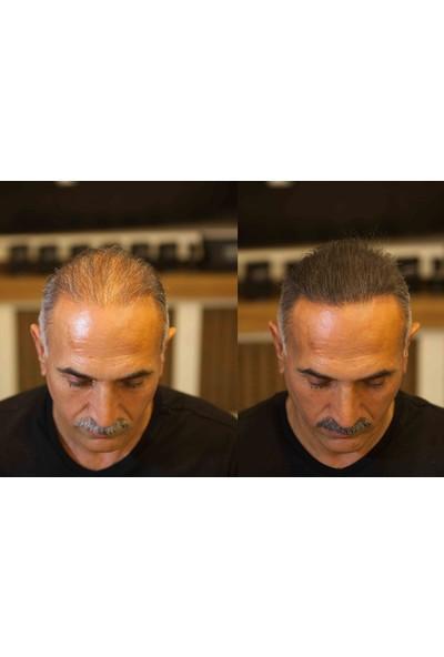 Fixdeep Suda Çıkmayan Yeni Nesil Saç Gürleştirici, Saç Dolgunlaştırıcı + Toppik Optimizer