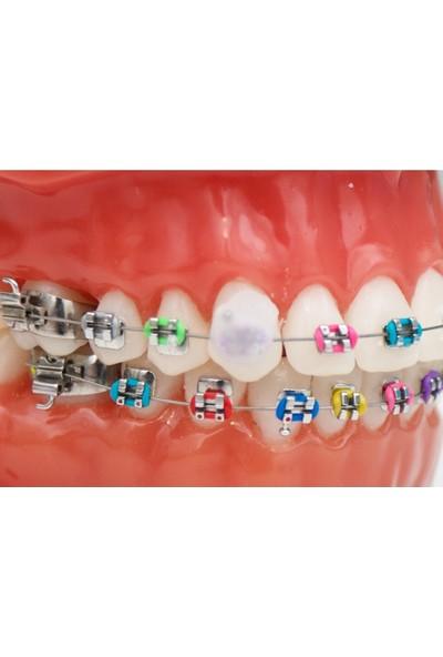 Dentalsepet Ortodonti Mumu - Diş Teli Mumu - Ortodontik Wax