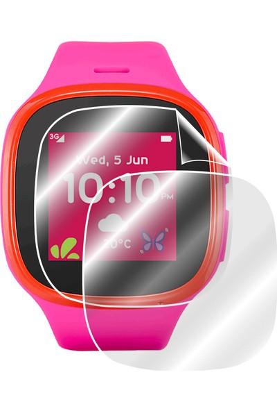 IPG Tcl - Alcatel Movetime Mt30 Model Akıllı Çocuk Saati Ekran Koruyucu 2 Adet