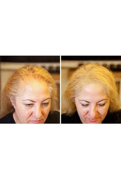 Fixplant 2 Şişe 56 gr Siyah Saç Tozu Toppak Yapmaz