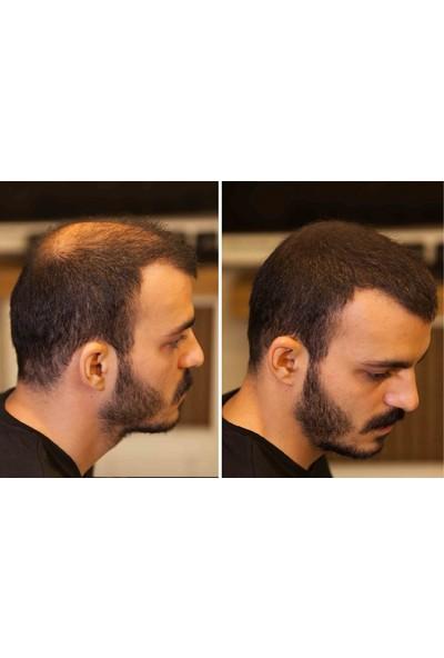 Fixplant 1 Şişe 28 gr Orta Kahve ( Saç Gürleştirici, Saç Dolgunlaştırıcı, Saç Fiberi, Saç Tozu )+ Optimizer Hediyeli
