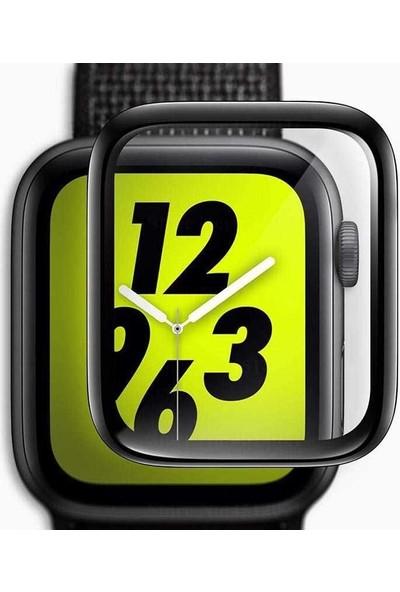 Case Street Apple Watch 40mm Full Yapışan Ekran Koruyucu Siyah