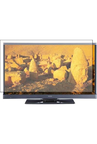 """Vestel 40 """" 102 Ekran Evrensel Universal Televizyon Ekran Koruyucu"""