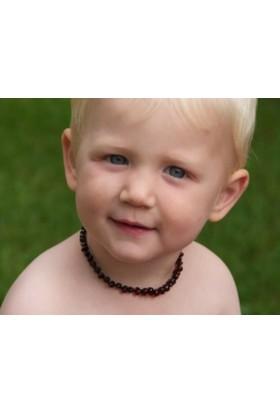 Kehribar Dünyası Kiraz Rengi Barok Kehribar Bebek Diş Kolyesi -32