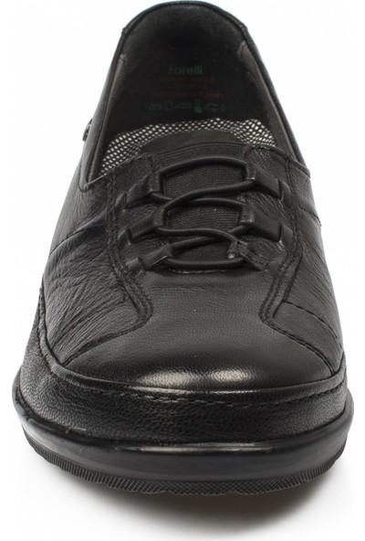 Forelli 26217 Kadın Deri Siyah Halluks Comfort Ayakkabı
