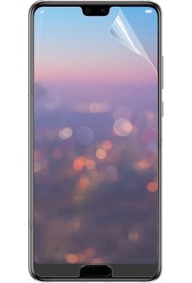 So Easy Huawei P20 Nano Ekran Koruyucu