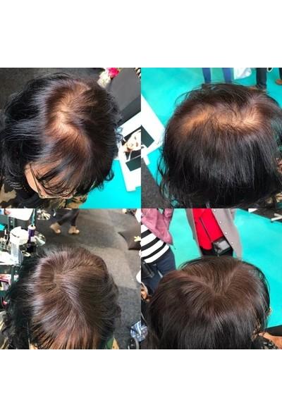 Organische Hair Building 200 gr Fibers Koyu Kahve Saç Lifi Topik