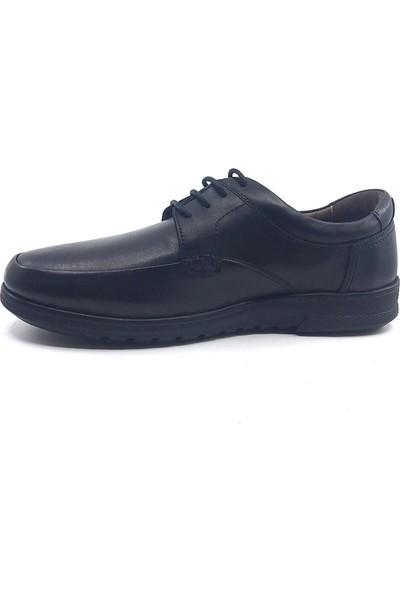 Forex Anatomic Siyah İplikli 3645 Rahat Deri Kauçuk Taban Günlük Erkek Ayakkabı