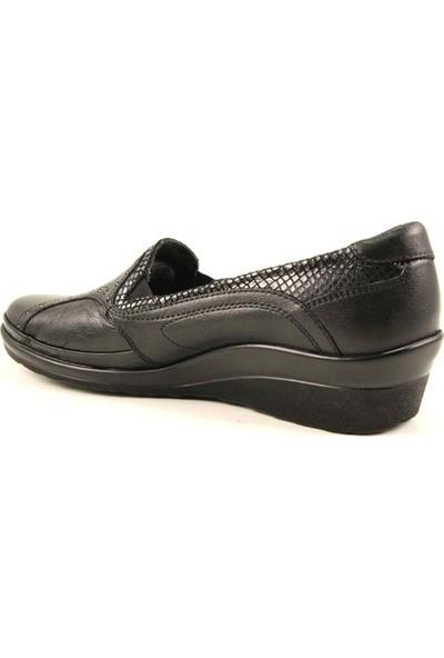 Forelli 26239 Kadın Deri Siyah Halluks Comfort Ayakkabı