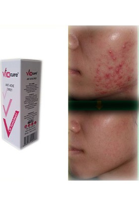 Viacure Anti -Acne Sprey 150 ml