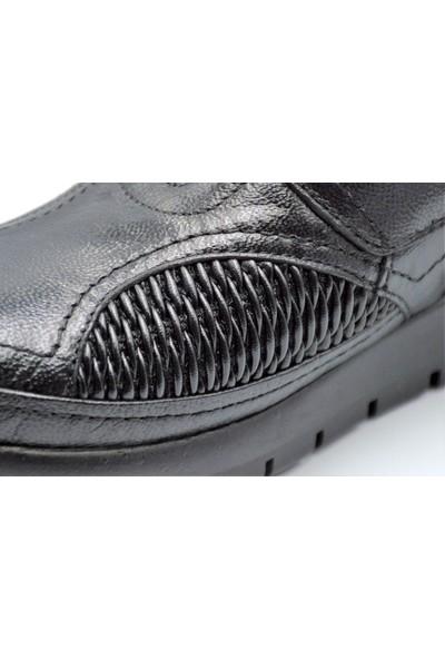 Biolife 88011 Anatomik Kemik Çıkıntısı Ayakkabısı