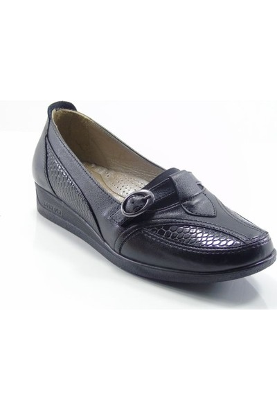 Norfix 102 Siyah Deri İç Astarlı Anatomik Kadın Ayakkabı