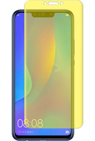 Microcase Huawei Nova 3i P Smart Plus Full Ön Kaplama TPU Soft Filmi