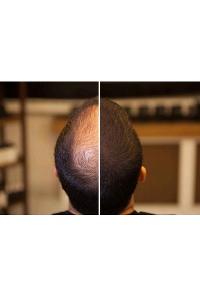 Fixplant Koyu Kahve 1 Şişe 28 Gr. Saç Tozu + Fixator Sabitleyici Sprey + Fixdeep Suda Çıkmayan Saç Dolgunlaştırıcı Pudra