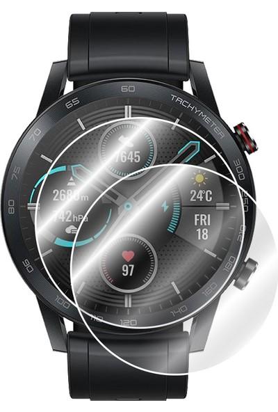 IPG Honor Magic Watch 2 46 mm Akıllı Saat Ekran Koruyucu 2 Adet