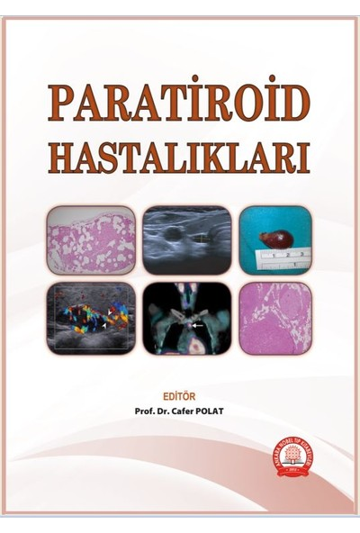 Paratiroid Hastalıkları - Cafer Polat