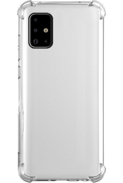 Tbkcase Samsung Galaxy A51 Kılıf Darbe Korumalı Silikon Şeffaf + Nano Ekran Koruyucu + Kamera Nano Ekran Koruyucu