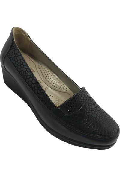 Norfix Siyah-Rugan Comfort Şık Günlük Kadın Ayakkabısı