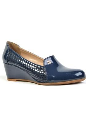 Elifneva Parlak Ortopedik Günlük Dolgu Topuk Bayan Ayakkabı
