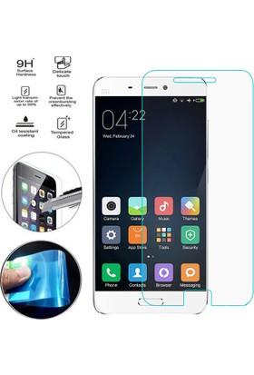 CaseUp Xiaomi Mi 5S Ultra İnce Nano Cam