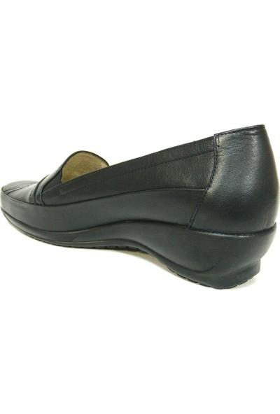 Fogs 6426 Siyah Bayan Anne Ayakkabısı
