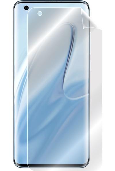 IPG Xiaomi Mi 10 & 5G Görünmez Ekran Koruyucu