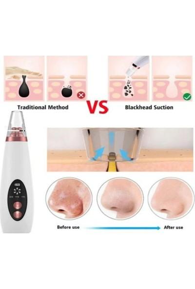 Afg Teknoloji Vakumlu Siyah Nokta ve Akne Yüz Temizleme Cihazı Şarjlı
