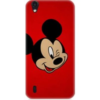 Teknomeg Vestel Venüs 5000 Mickey Mouse Desenli Silikon Kılıf