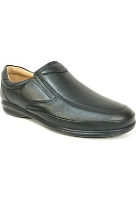 Fancy 402 Siyah %100 Deri Bağcıksız Diyabetik Anatomik Ayakkabı