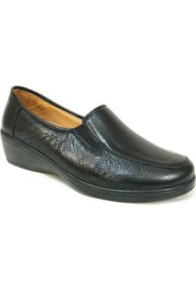 Dr.Burç 001 Siyah %100 Deri Ortopedik Comfort Bayan Ayakkabı