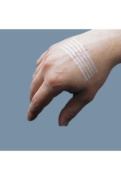 3M Yara Dikiş Bandı 3m Steri-Strip R1546 Beyaz 6X100 mm