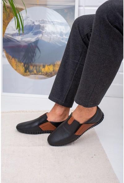 Epaavm Ortapedik Pedli Lastikli Deri Ayakkabı