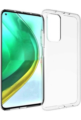 Fibaks Xiaomi Mi 10T Kılıf A+ Şeffaf Lüx Süper Yumuşak 0.3mm Ince Slim Silikon