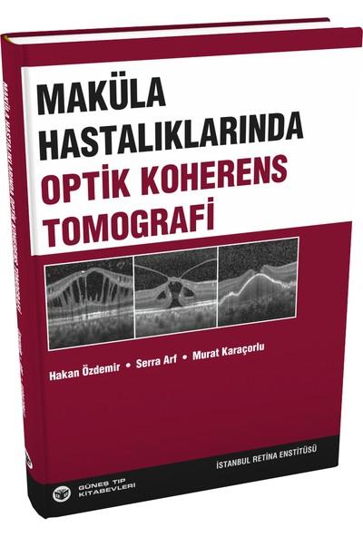 Maküla Hastalıklarında Optik Koherens Tomografi