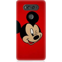 Teknomeg Lg V20 Mickey Mouse Desenli Silikon Kılıf